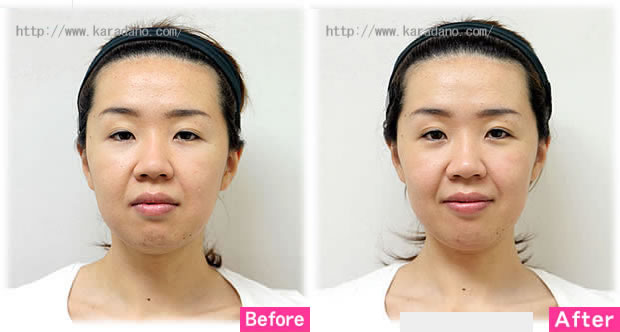 小顔矯正による若見え効果