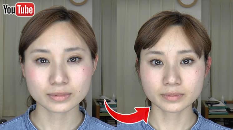 小顔矯正の施術動画画像